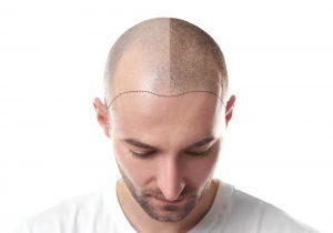 Risultati capelli trapianto FUE Milano
