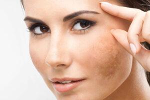 Blog Post - macchie della pelle - cosa fare con la medicina estetica?