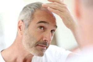 Tecnica trapianto FUE capelli